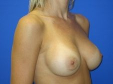 Breast Augmentation Patient 9 After