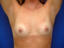 Breast Augmentation Patient 8 Before
