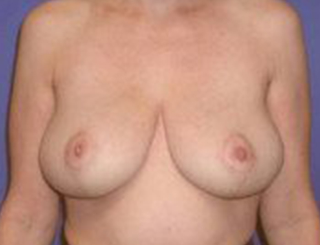 Breast Lift Patient 2