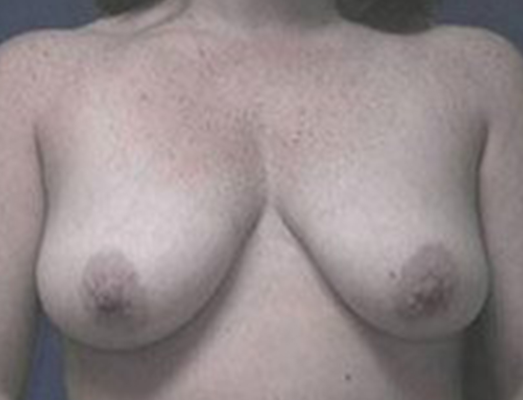 Breast Lift Patient 1 Before