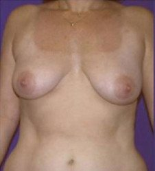 Breast Lift Patient 4 Before