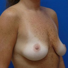 Breast Lift Patient 5 Before