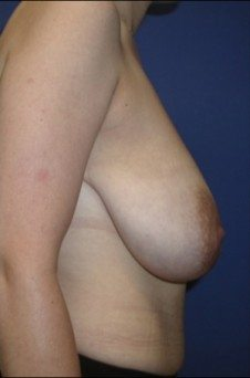 Breast Reduction Patient 1 Before