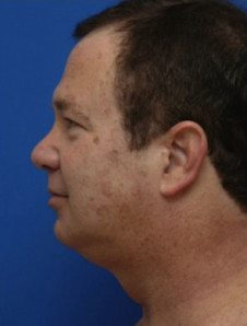 Chin Implant Patient 4 Before