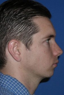 Chin Implant Patient 5 Before