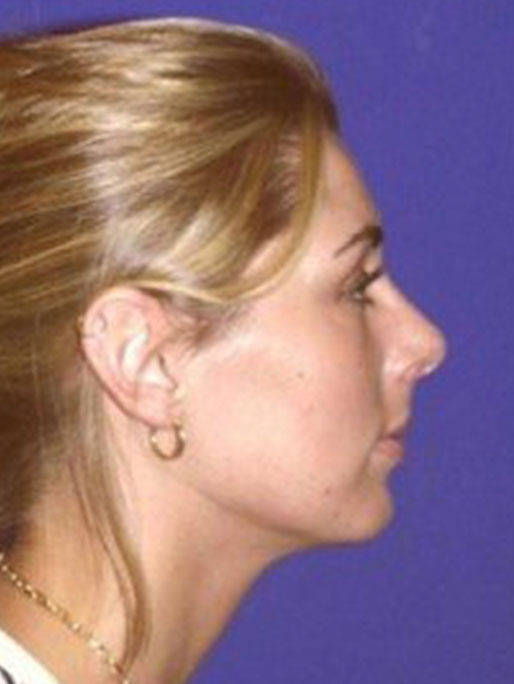 Rhinoplasty Patient 19 After