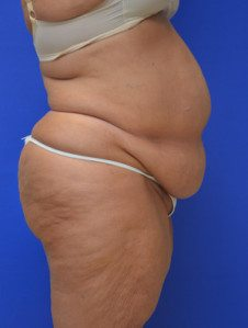 Tummy Tuck Patient 11 Before