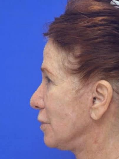 Boca Raton Face Lift Patient 17 After