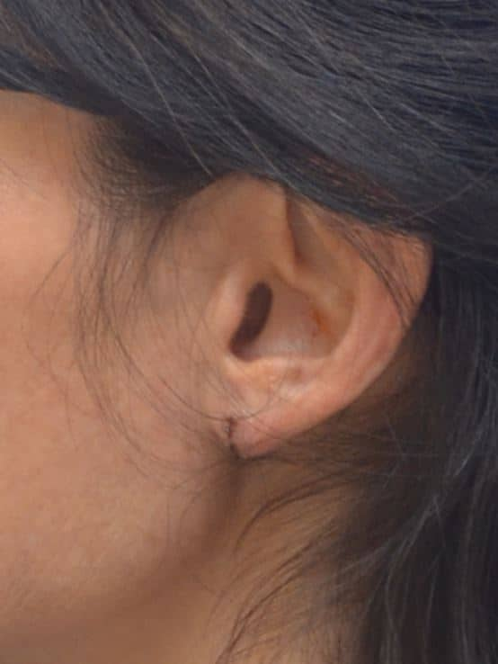 Earlobe Lift 1