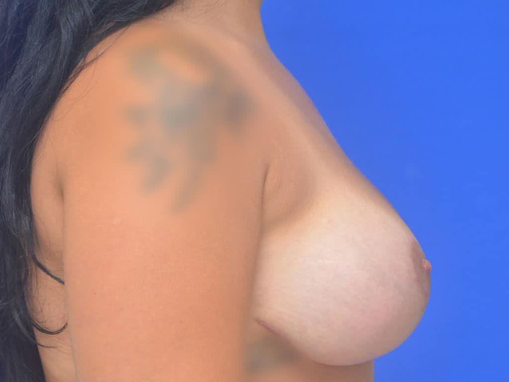 Breast Lift Patient 10 After