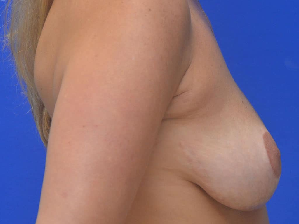 Breast Lift Patient 11 Before